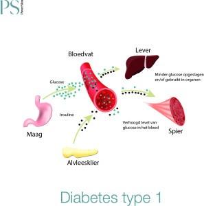 Diabetes-Type-1--297x300