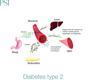 Diabetes-Type-2--300x271